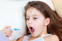 Zbliżenie śliczna smutna mała dziewczynka Varicella wirus lub Chickenpox bąbel wysypka na dziecku zdjęcie stock