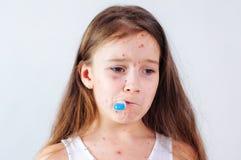 Zbliżenie śliczna smutna mała dziewczynka Varicella wirus lub Chickenpox bąbel wysypka na dziecku fotografia stock