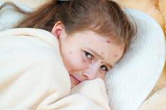 Zbliżenie śliczna smutna mała dziewczynka w łóżku Varicella wirus lub Chickenpox bąbel wysypka na dziecku obrazy royalty free
