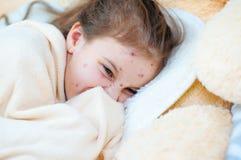Zbliżenie śliczna smutna mała dziewczynka w łóżku Varicella wirus lub Chickenpox bąbel wysypka na dziecku zdjęcia stock