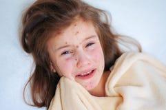 Zbliżenie śliczna smutna płacz mała dziewczynka w łóżku Varicella wirus lub Chickenpox bąbel wysypka na dziecku obrazy royalty free