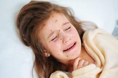 Zbliżenie śliczna smutna płacz mała dziewczynka w łóżku Varicella wirus lub Chickenpox bąbel wysypka na dziecku zdjęcia royalty free