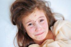 Zbliżenie śliczna smutna płacz mała dziewczynka w łóżku Varicella wirus lub Chickenpox bąbel wysypka na dziecku zdjęcia stock