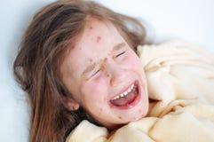 Zbliżenie śliczna smutna płacz mała dziewczynka w łóżku Varicella wirus lub Chickenpox bąbel wysypka na dziecku fotografia royalty free