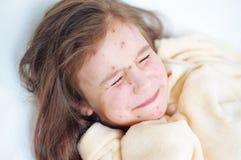 Zbliżenie śliczna smutna płacz mała dziewczynka w łóżku Varicella wirus lub Chickenpox bąbel wysypka na dziecku obrazy stock