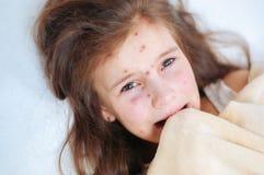 Zbliżenie śliczna smutna płacz mała dziewczynka w łóżku Varicella wirus lub Chickenpox bąbel wysypka na dziecku fotografia stock