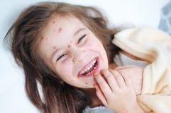 Zbliżenie ślicznych uśmiechów śmieszna mała dziewczynka w łóżku Varicella wirus lub Chickenpox bąbel wysypka na dziecku fotografia stock