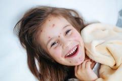 Zbliżenie ślicznych uśmiechów śmieszna mała dziewczynka w łóżku Varicella wirus lub Chickenpox bąbel wysypka na dziecku obraz stock