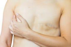 Zbliżenie azjatykcia kobieta z dużą blizną po piersi operaci, pierś c Zdjęcia Stock