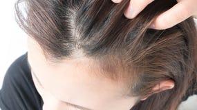 Zbliżenie kobiety ręki itchy skalp, Włosianej opieki pojęcie zdjęcia royalty free