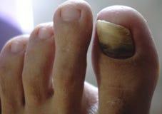 Zbliżenie kosmata ludzka stopa i palec u nogi z stłuczenia palec u nogi gwozdziem na wielkim palec u nogi na białym tle krakingow obraz stock