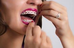 Zbliżenie młoda kobieta z brasami flossing zęby Fotografia Royalty Free