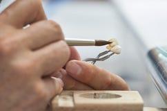 Zbliżenie stomatologicznego technika stawiać ceramiczny stomatologiczni wszczepy zdjęcia royalty free
