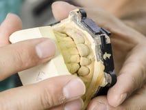 Zbliżenie stomatologicznego technika stosować ceramiczny zęby, wszczep Fotografia Stock