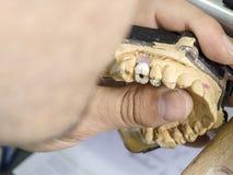 Zbliżenie stomatologicznego technika stosować ceramiczny zęby, wszczep Zdjęcia Stock