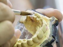 Zbliżenie stomatologicznego technika stosować ceramiczny zęby, wszczep Obraz Stock