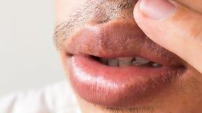 Zbliżenie wargi obsługuje problemową opiekę zdrowotną, Herpes simplex zdjęcia stock