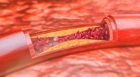 Zbliżenie atherosclerosis 3D rendering royalty ilustracja
