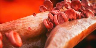 Zbliżenie atherosclerosis 3D rendering Obraz Royalty Free