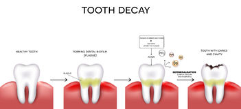 Zębu zagłębienie i próchnicy Fotografia Royalty Free