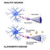 Zdrowa komórka i neurony z Alzheimer ` s chorobą Tau hypothesi Obraz Stock