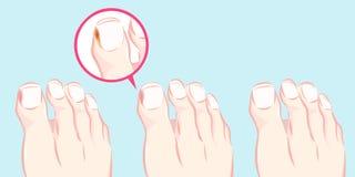 Zdrowa stopa i wrośnięty gwóźdź ilustracja wektor