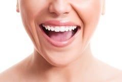 zdrowi zęby Obraz Stock