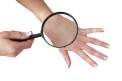 Zdrowy skóra czek na kobiety ręce z loupe zdjęcia royalty free