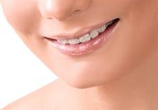 Zdrowy uśmiech bieleć zębów Stomatologiczna opieka Zdjęcia Stock