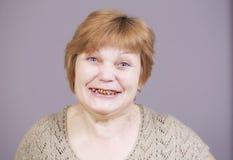 Zeer emotionele vrouw die met gouden tanden op een grijze achtergrond glimlachen Stock Afbeeldingen