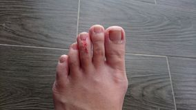 Zehenverletzung Stockfotografie