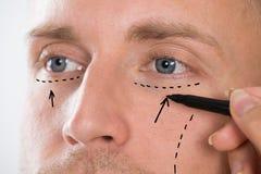 Zeichnungs-Korrektur-Linie der Person Handmit Pen Near Mans Augen Lizenzfreie Stockfotografie