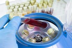 Zentrifugierungsblut und biologische Proben stockfotos