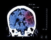 Zerebrale Infarktbildung an der linken Hemisphäre (ischämischer Schlaganfall) (CT-Scan des Gehirns): Medizin- und Wissenschaftshi lizenzfreie stockbilder