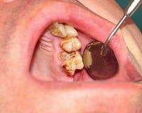 Zerstört durch Karieszähne lizenzfreies stockbild