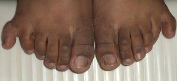Zes vingers in beide voeten royalty-vrije stock afbeelding