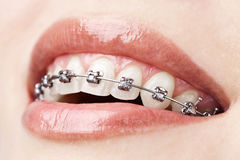 Zähne mit Klammern Lizenzfreie Stockbilder