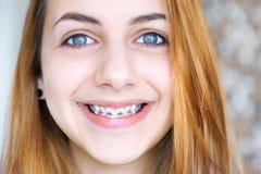 Zähne mit Klammern Stockfoto