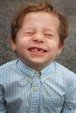 Zie mijn ontbrekende tand Stock Foto's