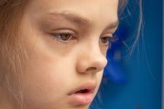 Ziek kind, bindvliesontsteking op de ogen royalty-vrije stock foto