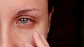 Ziek rood menselijk oog van een jonge vrouw Een meisje stijgt haar glazen op, die een rood oog tonen Vermoeide ogen van de comput stock videobeelden
