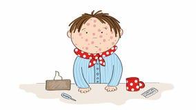 Zieke jongen met waterpokken, mazelen, rubeola of huiduitbarsting die zich achter de lijst met thee, geneeskunde, thermometer en  stock video