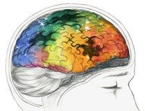 Zieke menselijke hersenen Royalty-vrije Stock Afbeeldingen