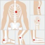 Ziekte van de verbindingen en de beenderen royalty-vrije illustratie