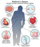 Ziekte van Parkinson stock illustratie