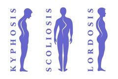 Ziekten van de stekel Scoliose, lordose, kyfose Het tekort van de lichaamshouding Menselijke silhouetten op wit Vector Illustrati stock illustratie