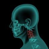 Zij x-ray mening van menselijke schedel en hals stock illustratie