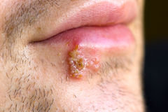 zimne herpes labialis rany fotografia stock