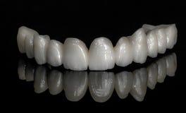 Zircônio cerâmico dentes Técnico dental Fotografia de Stock Royalty Free