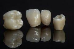 Zircônio cerâmico dentes Técnico dental Fotos de Stock Royalty Free